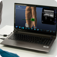 Ultrasound Simulator for Elbow: Anatomy & Physiology Module