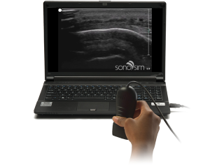 Soft tissue ultrasound can diagnose hematomas, abscesses, and cysts.