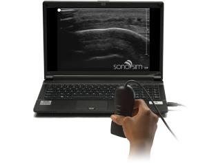 SonoSim Ultrasound Challenge: мягкая ткань