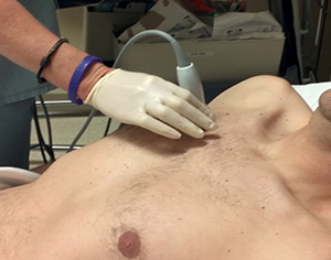 Ultrasound to detect pneumothorax, e-fast scan