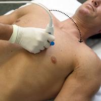 Herzbett-Elektrokardiographie zur Diagnose der Belastung des rechten Ventrikels mit FOCUS Cardiac Ultrasound