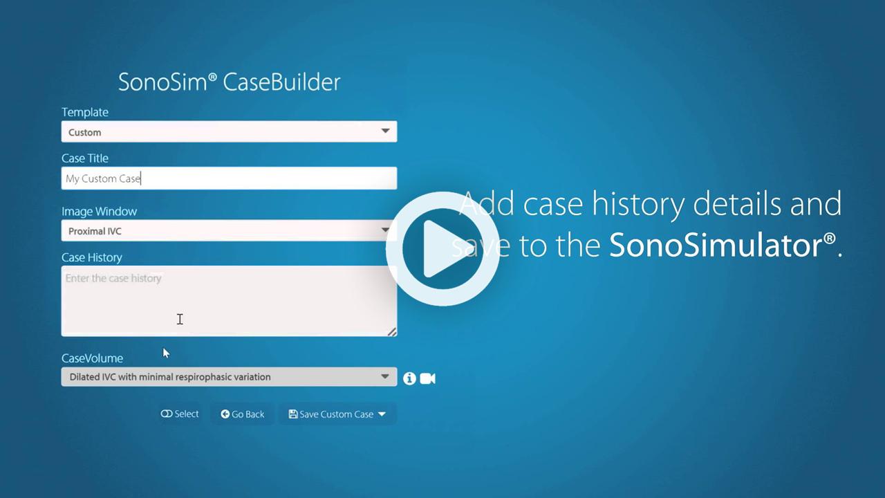 SonoSim® CaseBuilder