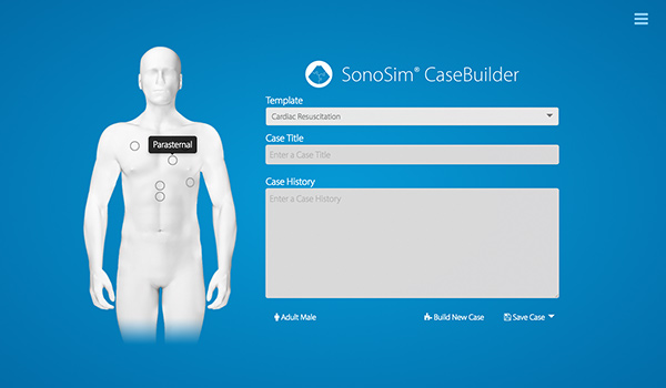 SonoSim® CaseBuilder Select Point