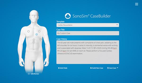 SonoSim® CaseBuilder حفظ القضية