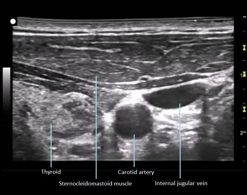 Introducción del ultrasonido en el plan de estudios de anatomía ...