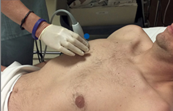 SonoSim Ultrasound Training