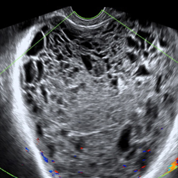 ultrasound scanning of ovaries for abnormal conditions