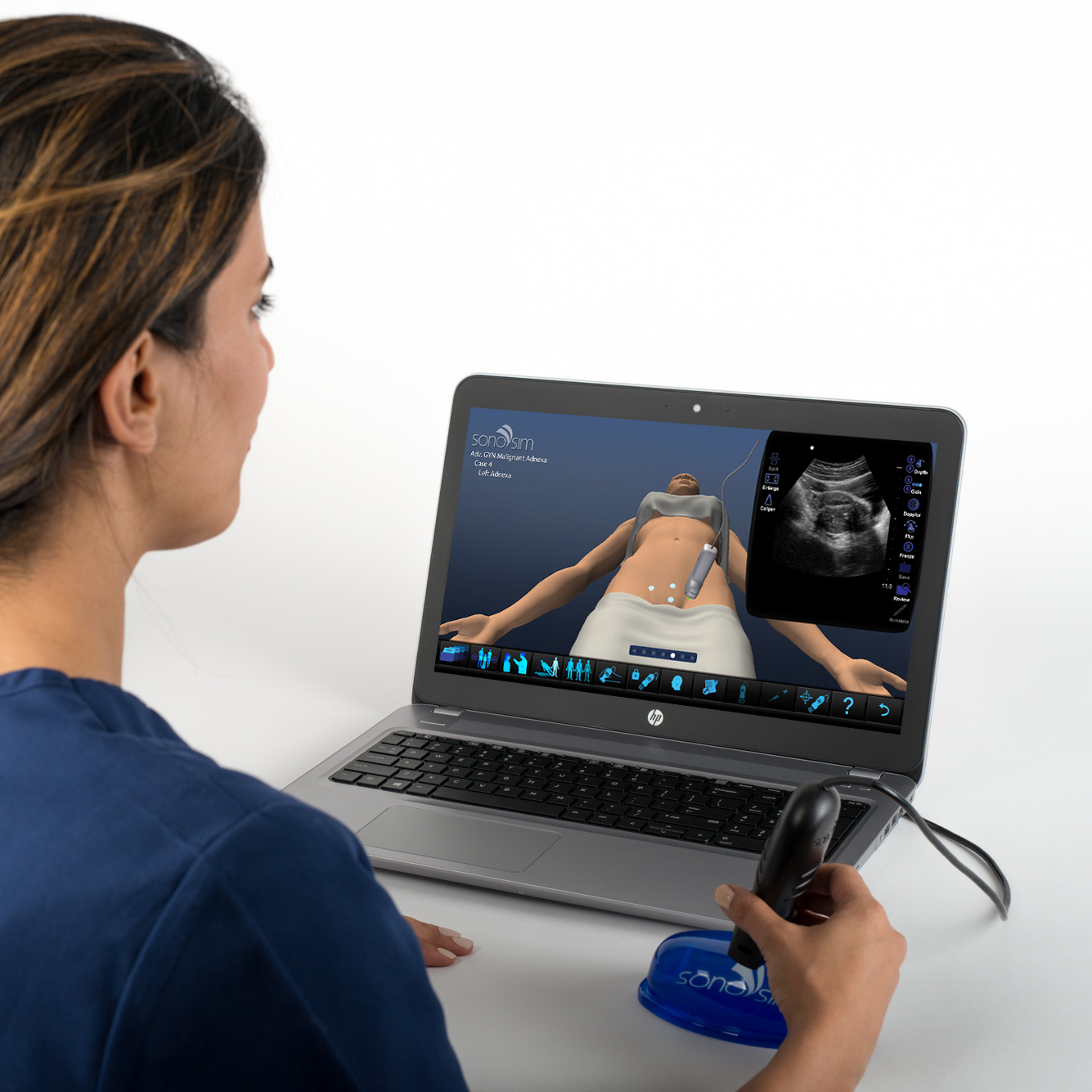Ultrasound Simulator for GYN Ultrasound Malignant Adnexal Conditions: Advanced Clinical Module