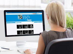 SonoSim Ultrasound Training Solution - Performance Tracker