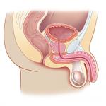 Prostate Ultrasound Course