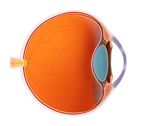 Ocular Cases