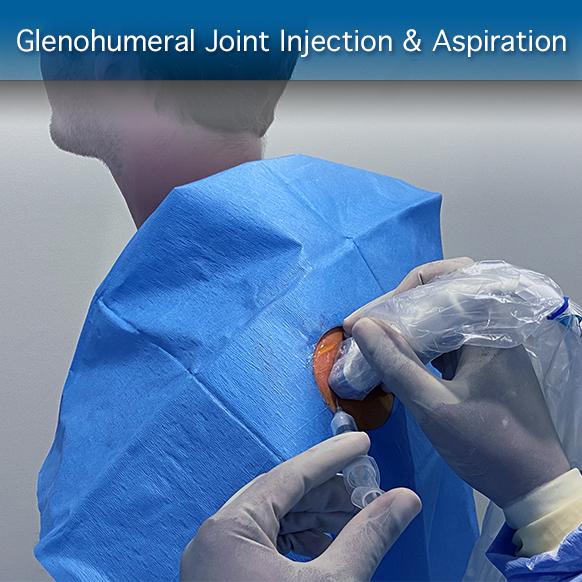 Online-Ultraschallkurs für Glenohumeral Joint Injection & Aspiration: Verfahrensmodul