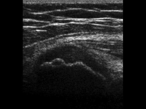 Effusione articolare dell'anca
