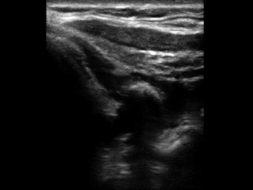 Ultrasuoni per assistenti sanitari e infermieri