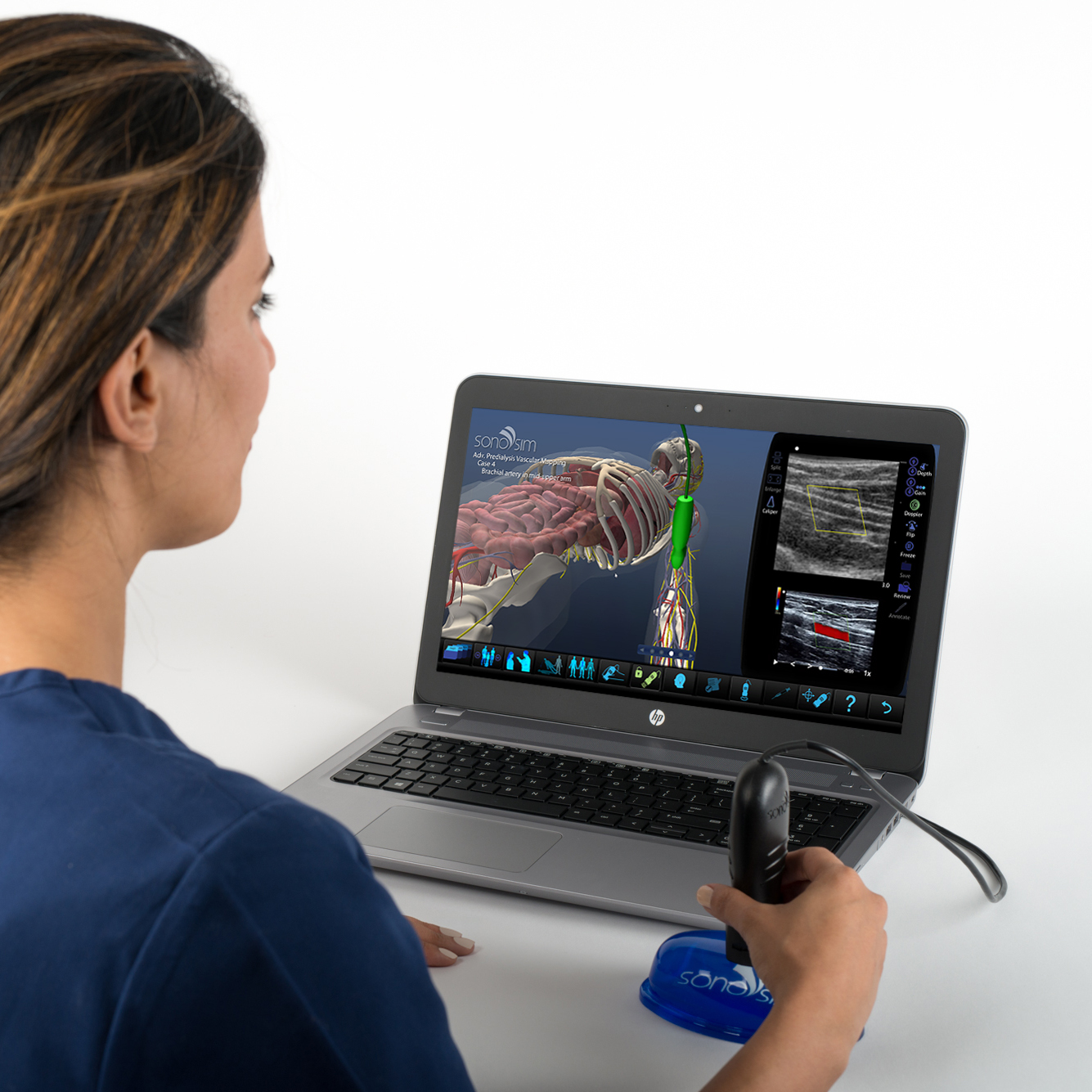 Ultrasound Simulator for Vascular Mapping for Preoperative Planning of Dialysis Access: Advanced Clinical Module