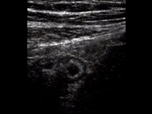 Surgery ultrasound