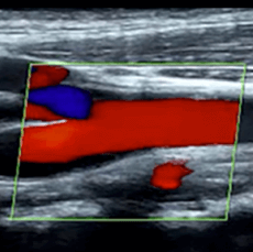 Focused Cardiac Ultrasound (FoCUS) – Part I: Advanced Clinical Module