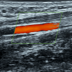 GYN Ultrasound of Nonpregnant Normal Uterus: Advanced Clinical Module