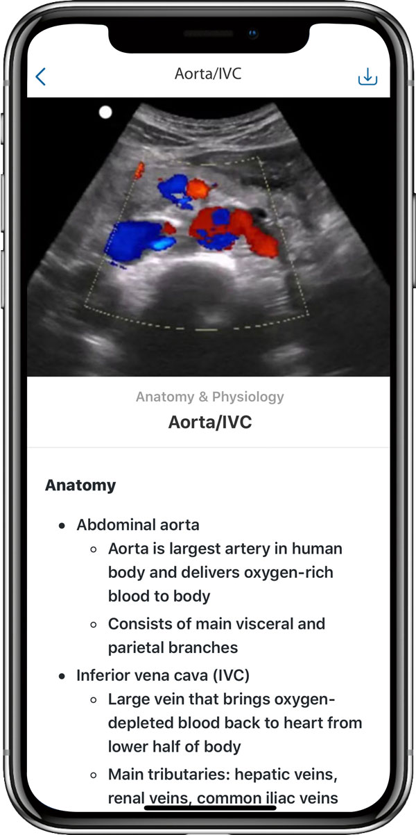 Ultrasound training on the cloud allows for sonography training at school or home, with multiple content choices