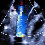 lvad echocardiography