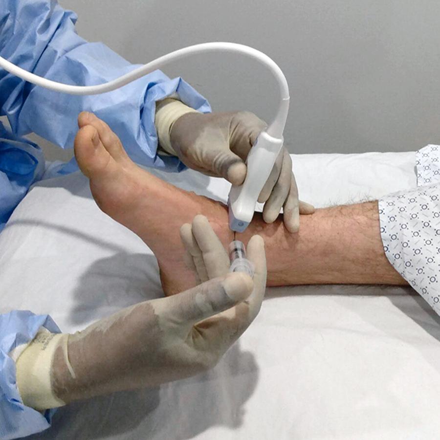 Tibiotalargelenk-Injektion und -Aspiration: Verfahrensmodul