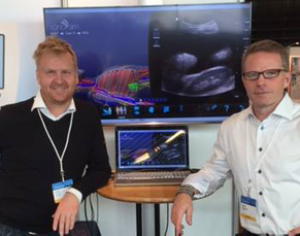 SonoSim International Updates
