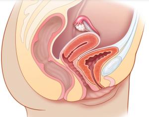 Nuevo uso del ultrasonido para enseñar al sistema reproductivo Habilidades de exploración física y anatomía pélvica