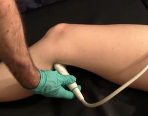 Point-of-Care-Ultraschalldiagnose eines proximalen Kniesehnenrisses