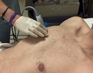 Vantaggi dell'ecografia cardiopolmonare nella rianimazione post-cardiopolmonare Pneumotorace