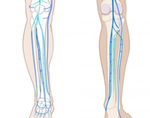 Leg-Venous