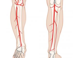 Leg-Arterial