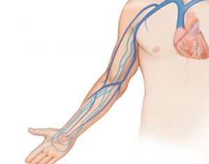 Arm-Venous