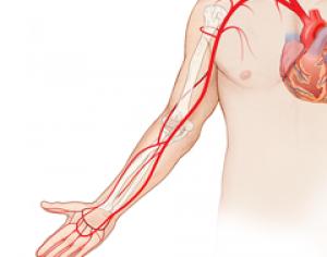 Arm-Arterial